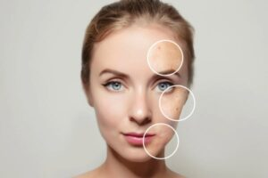 Read more about the article Why Do You Need Dermatology Compounding For Acne?